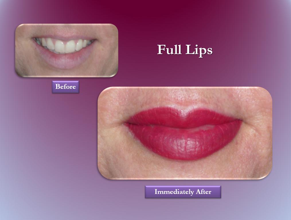 full lips permanent makeup
